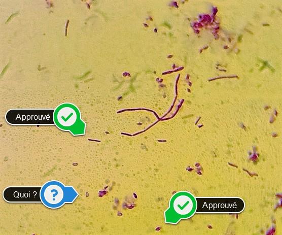 Bt toxines et sporanges