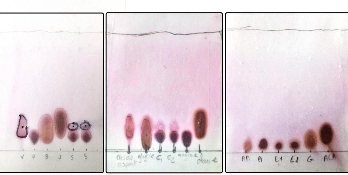 CCM acides aminés ECE Comparaison