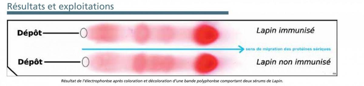 Electrophorese proteines acetate jeulin
