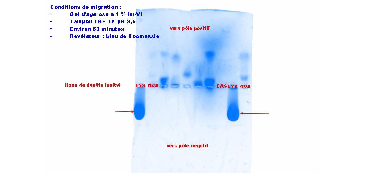 Electrophorese proteines agarose 2 1