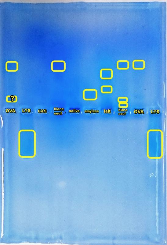 Electrophorese revelation paillot m 5